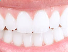 Bright white smiling teeth