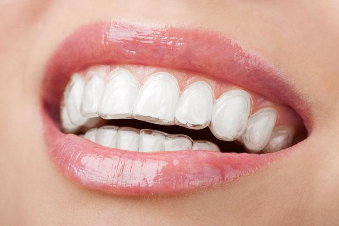 Denta-joy dental Clinic,Dental Clinic in Bangkok,Thailand