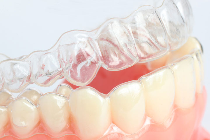 Invisalign va these seemingly invisible braces will go undetected to the outside world unless you point them out yourself solutioingenieria Choice Image