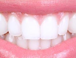 Bright white smiling teeth